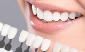 diş beyazlatma, bleaching