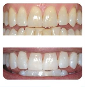 sefaköy diş beyazlatma