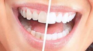 diş beyazlatma sefaköy, sefaköy diş beyazlatma, küçükçekmece diş beyazlatma, diş beyazlatma küçükçekmece, diş beyazlatma