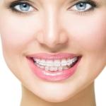 dis_klinigi_kucukcekmece, küçükçekmece implant, küçükçekmece diş beyazlatma, küçükçekmece şeffaf plak, küçükçekmece ortodonti, küçükçekmece diş hekimi, küçükçekmece diş kliniği, sefaköy diş hekimi, sefaköy diş kliniği, küçükçekmece ortodonti doktoru, sefaköy ortodonti doktoru