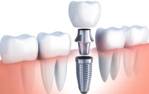 küçükçekmece implant