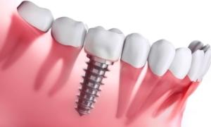 küçükçekmece implant tedavisi