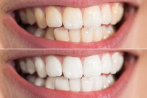 küçükçekmece diş beyazlatma, diş beyazlatma küçükçekmece, sefaköy diş beyazlatma, diş beyazlatma sefaköy