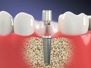 sefaköy implant tedavisi
