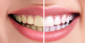 küçükçekmece diş beyazlatma