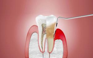 küçükçekmece implant, küçükçekmece diş beyazlatma, küçükçekmece şeffaf plak, küçükçekmece ortodonti, küçükçekmece diş hekimi, küçükçekmece diş kliniği, sefaköy diş hekimi, sefaköy diş kliniği, küçükçekmece ortodonti doktoru, sefaköy ortodonti doktoru, çocuk diş doktoru, çocuk diş hekimi, diş doktoru çocuk, sefaköy diş eti hastalığı