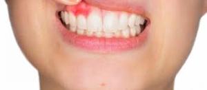 periodontoloji uzmanı, periodontoloji uzmani, sefaköy periodontoloji uzmanı, küçükçkemece periodontoloji uzmanı, periodontoloji uzmanı sefaköy, periodontoloji uzmanı küçükçekmece