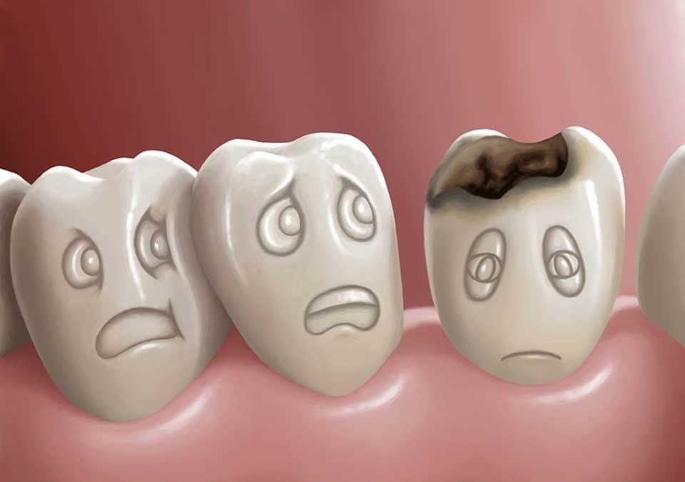 diş çürüğü