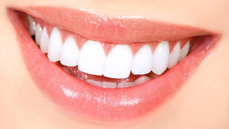 Diş Beyazlatma (Bleaching)
