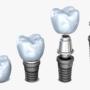Dental İmplantlar Kimlere Uygulanabilir?