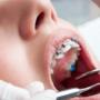 Ortodontik Tedavi Sırasında Beslenme Nasıl Olmalıdır?