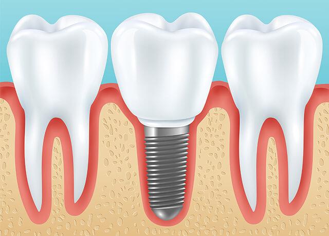 implant tedavisi sefaköy, sefaköy implant tedavisi