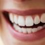 Sağlıklı Diş Etleri için Yapılması Gerekenler