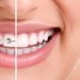 Sabit ve Hareketli Ortodontik Apareyler Kimler İçin Kullanılır?