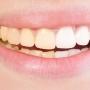 Ağız ve Diş Sağlığında Sigaranın Etkilerini Kaldırmak