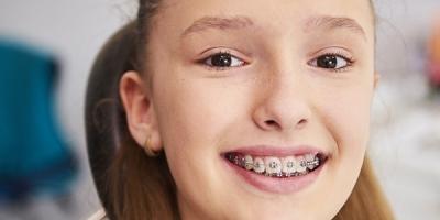 Diş Teli Çeşitleri Nelerdir?